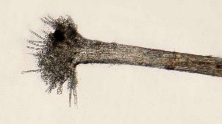 Haarwurzel in Wasser, x100