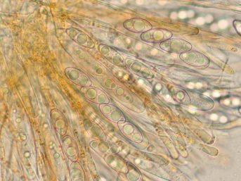 Asci und Sporen in Wasser, x630