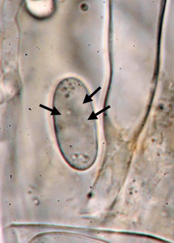 Spore mit Zellkernen (Pfeile) in Wasser, x1000