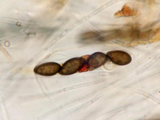Paraphysen und Sporen in Baral's, x1000