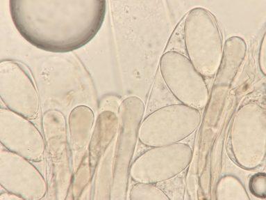 Asci mit Sporen und Paraphysen in Wasser, x1000