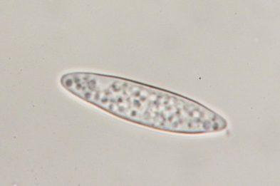 Spore in Wasser, x1250