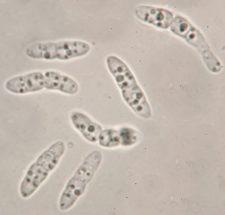 Sporen in Wasser, x1250