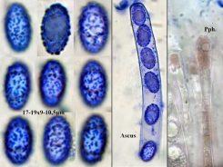 Collage mit Sporen und Ascus in CB, Paraphysen in Wasser, x1000