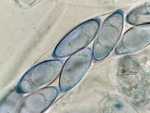 Ascus mit Sporen in CB, x1000