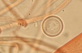 Spore in Kongorot, x1250