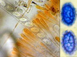 Asci mit Sporen in Paraphysen in Wasser, rechts zwei Sporen in CB, x1000