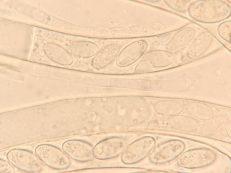 Asci und Paraphyse in Wasser, x1000