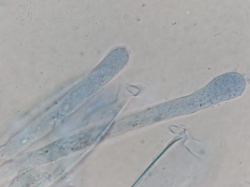 Paraphysen in CB, x1000