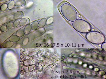 Collage mit Asci, Sporen und Paraphysen in Wasser, x1000