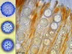 Asci mit Sporen in Wasser, x800; Sporen in CB, x1000