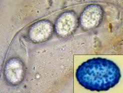 Sporen in Wasser bzw. CB, x1000