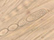 Ascus mit Sporen und Paraphysen in Wasser, x1000