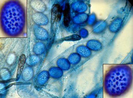 Asci und Sporen in CB, x400 bzw. x1000