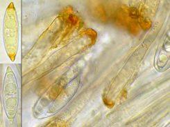 Sporen und Paraphysen in Wasser, x1000