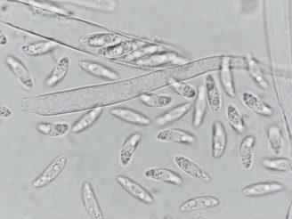 Asci und Sporen in Wasser, ca. x800