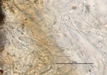 Asci mit Sporen in Wasser, x100