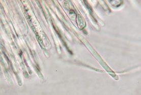 Paraphysenspitzen in Wasser, x1000
