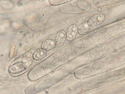 Ascus mit Sporen in Wasser, x1000