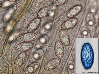 Sporen und Asci in Wasser, Spore in CB, x1000