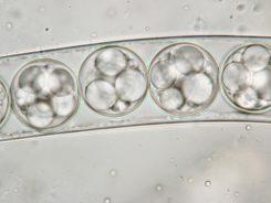 Ascus mit Sporen in Wasser, x1250