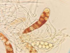Asci mit Sporen in Wasser, x630