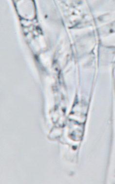 Ascusbasis mit Haken in Wasser, x1000