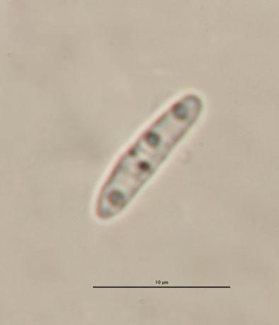 Spore in Wasser, x1000