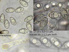 Collage mit Sporen, Paraphysenspitze und Ascus in Wasser, x1000