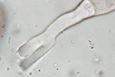 Ascusbasis in Wasser, x1250