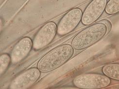 Asci mit Sporen in Wasser, x1250