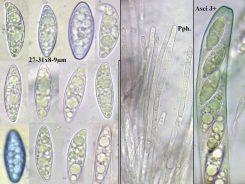 Sporen, Paraphysen und Ascus in Wasser und teils in CB, x1000