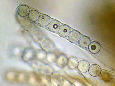 Ascus mit Sporen in Lugol's, x1000