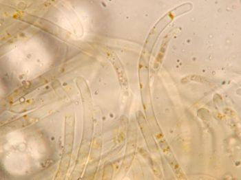 Paraphysenspitzen in Wasser, x1250