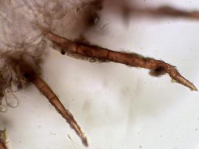 Haare der Außenseite in Wasser, x400