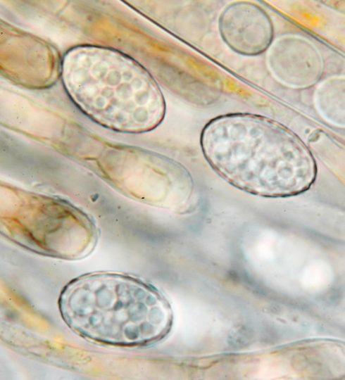 Sporen und Paraphysenspitzen in Wasser, x1000