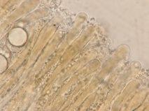 Paraphysen in Wasser, x1000