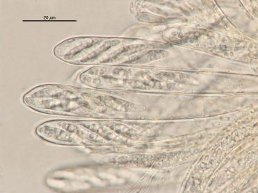 Asci mit Sporen in Wasser, x1000