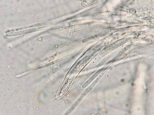 Ascus mit Paraphysen in Wasser, x1000