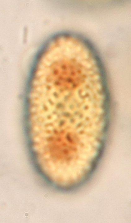 Sporenoberfläche in Lugol's, x1000
