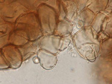 Zellen der Außenseite in Wasser, x1000