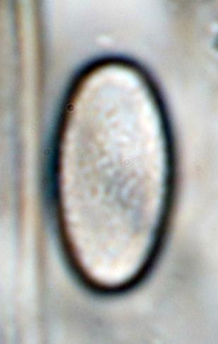 Sporenoberfläche in Wasser, x1000