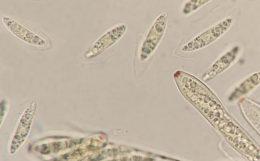 Asci und Sporen in Baral's, x1000