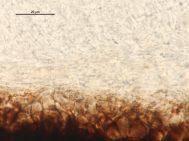 Exzipulum- und Medulla-Zellen in Wasser, x1000