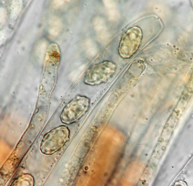 Ascus und Paraphyse in Lugol's, x1000