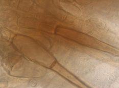 Randhaare in Wasser, x1000