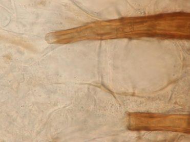 Haarbasen in Wasser, x1000