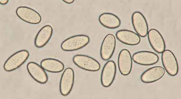 Sporen in Lugol's, x1000