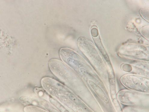 Paraphyse in Wasser, x1250