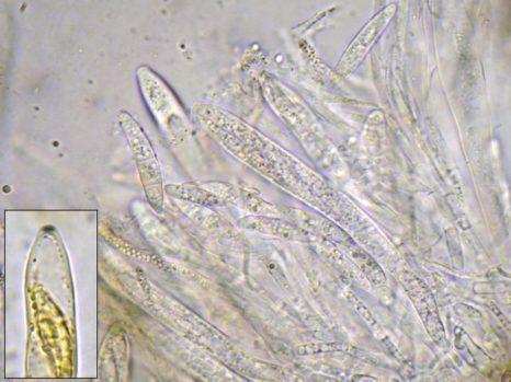 Asci und Paraphysen in Wasser, unten links Ascus in Baral's, x1000
